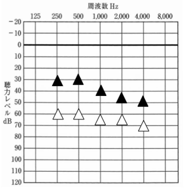 要注意の波形。フィッテング理論でもそうだが、あまり低域は、大きくしない。