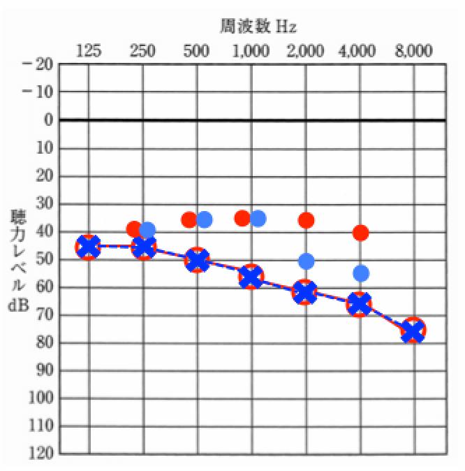 赤丸が最終地点、青丸が中間地点、初めは、中間地点を目指し、最終的には、赤丸を目指す。なお、青丸は、最低限、効果を感じる領域には、音を入れる。