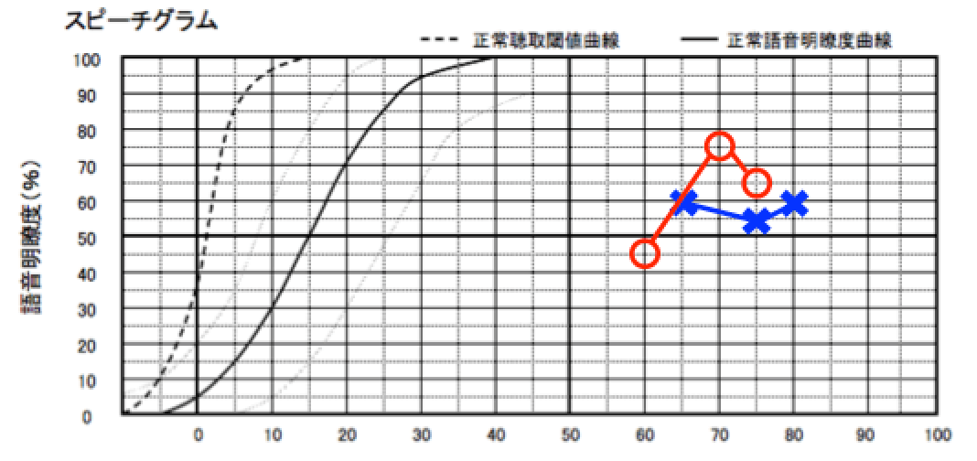 測定した限り、右は、75%、左は、60%が最大の明瞭度。