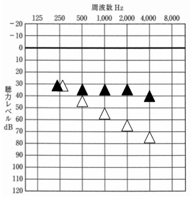▲が補聴器装用時、△が補聴器なし。かなり理想の聞こえだが、高音域を補えていると、不思議と結果がよくなる傾向がある