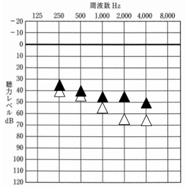 初回の対応時、1000Hzは、目標より低いが、その他は、概ね良し。