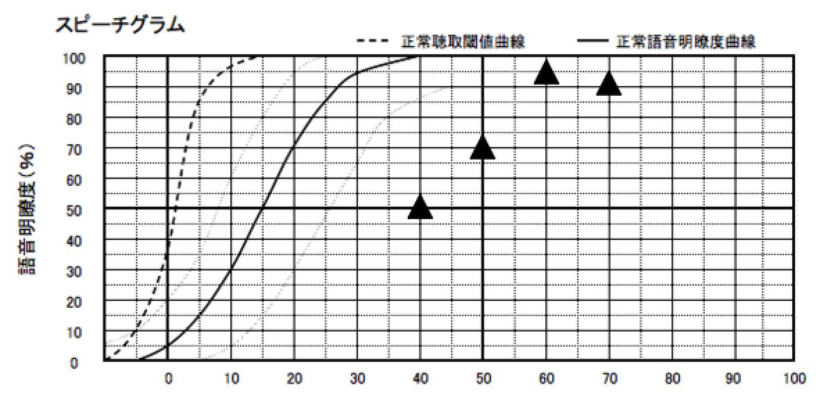 基本的に音場閾値の数値がある程度よくなると、こちらも良くなる傾向がある。