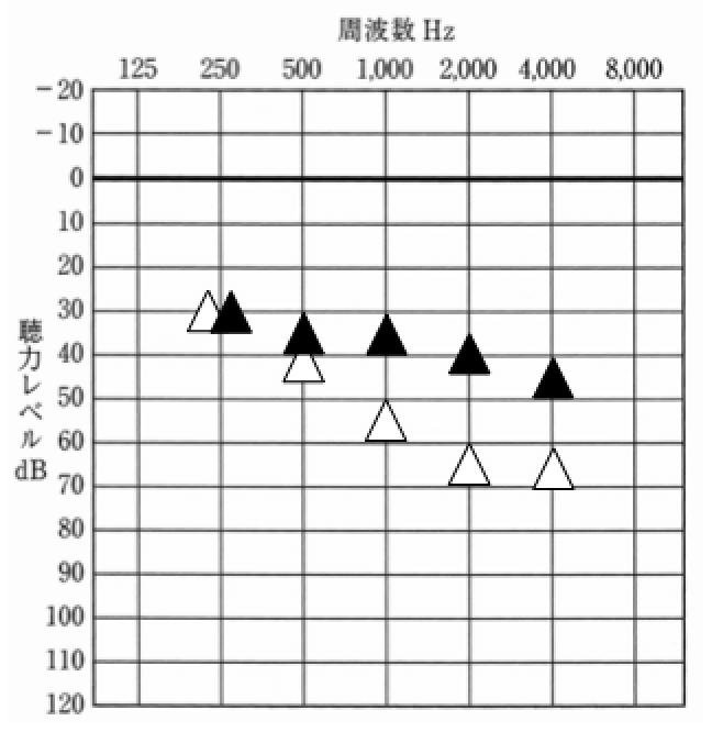 補聴器を装用した状態を調べる音場閾値測定の結果。補聴器の世界には、このようなものもある。