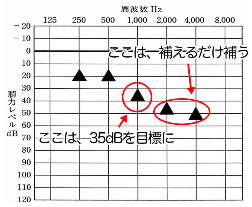 補聴器をベースに考えた場合の改善方針。重要なのは、1000Hzを35dBまで聞こえさせること。そのほかは、補えるだけ補い、不快感や耳の辛さが出ない程度に補う。