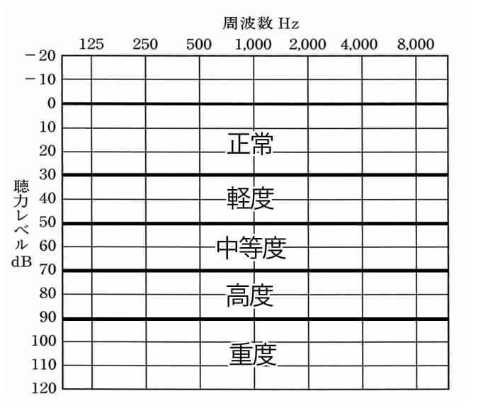 主な聴力レベル表。こちらで見ると状況がわかりやすい。