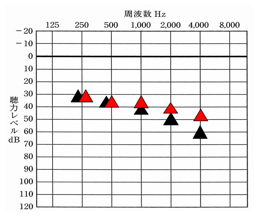 例えば、黒い三角が意味現在聞こえている数値。赤が聞こえを目指す位置だとわかると何がわかるだろうか。