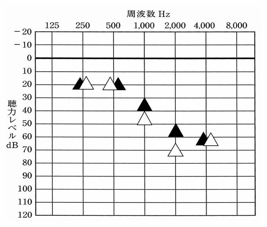 初回の通常設定の音の調整。高い音は、入れると響きや辛さが出てしまうため、軽減しつつ、効果を確保するため、1000Hzは35dBで聞こえるように設定。