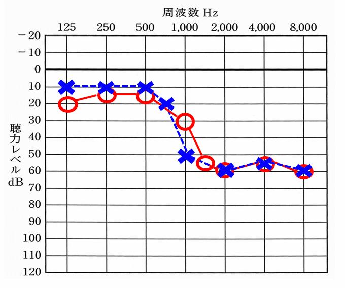 お客さんの聴力図。左右は、同じくらいで、1000Hzくらいから下り始める。1000Hzが聞きにくくなると、結構聞きにくさを感じやすくなる。