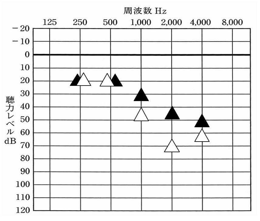audio-s-i-02