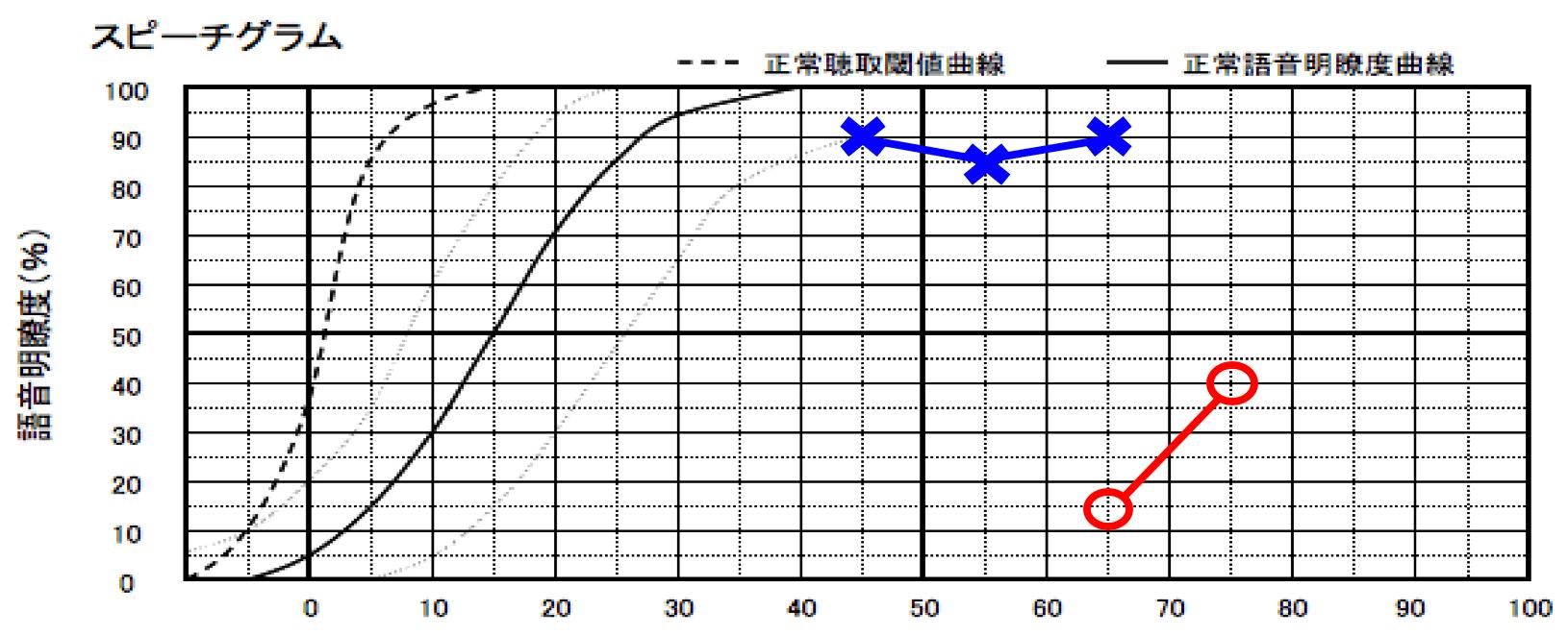 実際に語音明瞭度測定を行った結果。右側は、音を大きくしても音声が聞き取りにくい状態であることがわかった。
