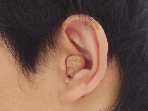 耳あな形を装用した図。このように耳の中に入るのが、耳あな形になる。