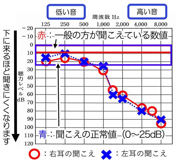聴力図(オージオグラム)は、人間の感覚で、記されているため、0dBが20代で聞こえている平均値になります。そこから、どのくらい下がっているのか。を見れるようにしたのが、聴力図ですね。