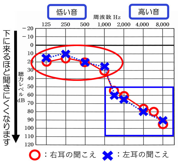 赤で囲んでいる部分は、ほぼ正常の範囲。しかし、青の部分は、難聴度も高い。高音急墜型の方は、このように極端に分かれていることが多い。