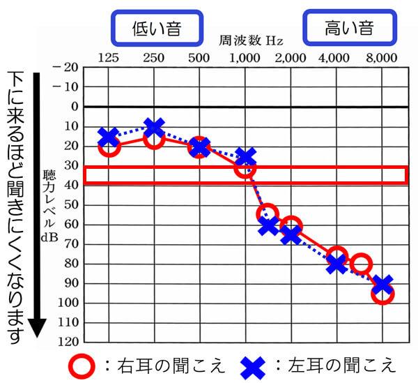 今現在の補聴器ですが、改善値としては、35dB、よくて30dBくらいまでの改善になります。0dBの部分まで、改善は、今現在ではできません。