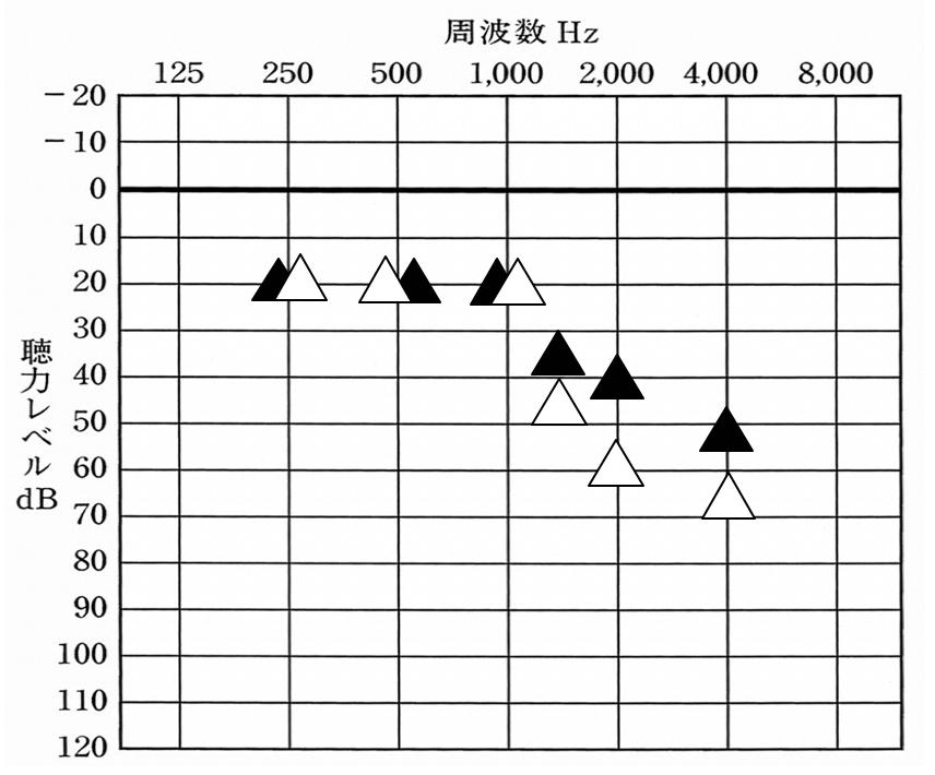 補聴器の世界には、補聴器を装用した状態でどのくらい聞こえるのかを調べる道具がある。こちらは、その道具を使用して調べた数値。