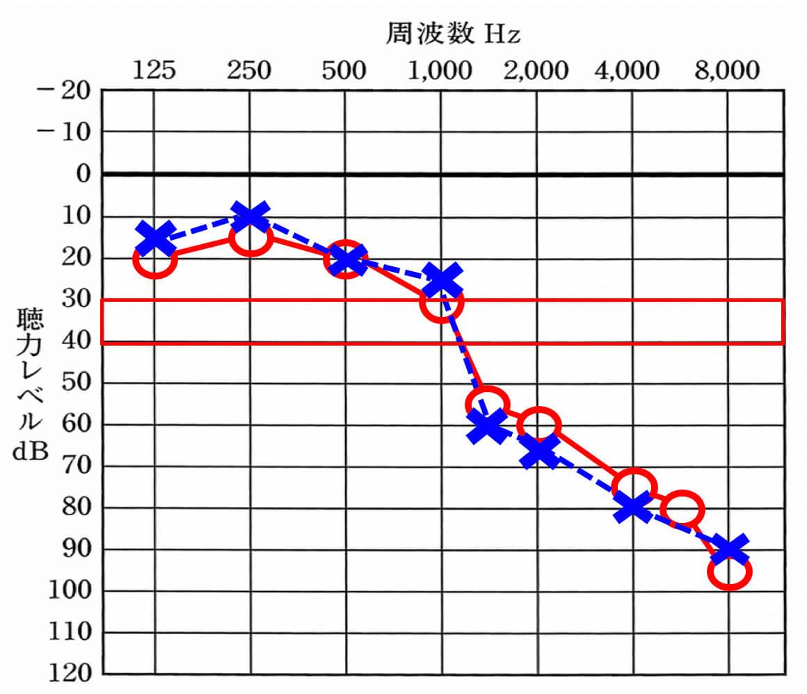 補聴器が補える上限は、大体赤い枠で囲まれた部分となる。それよりも聞こえているところは、良くはできない。