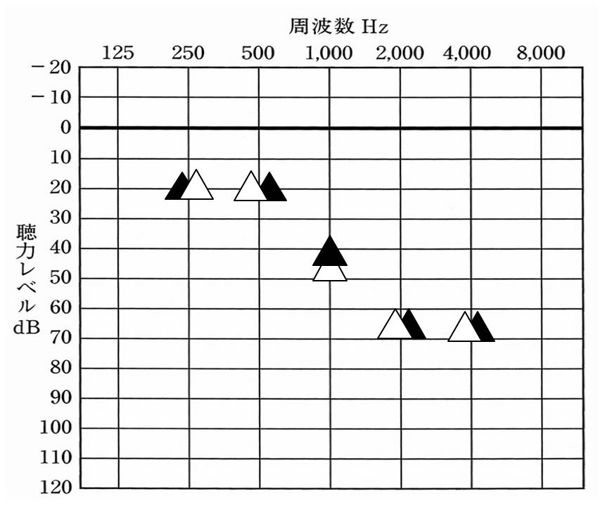 こもり、響きは楽になるものの、補聴器の効果がほとんどない状態に……。補聴器は、耳せん一つで、大きく効果が変化する。なお、こちらは、補聴器の音は、一切変えていない状態での比較となる。