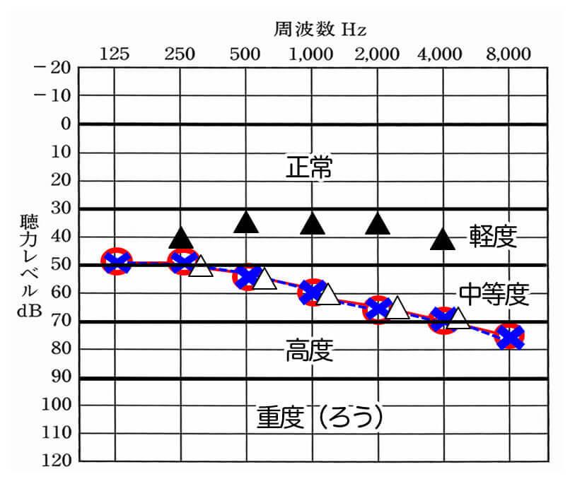 このような図があった場合は、補聴器を装用することで、軽度難聴くらいまでは、改善できたことがわかる。