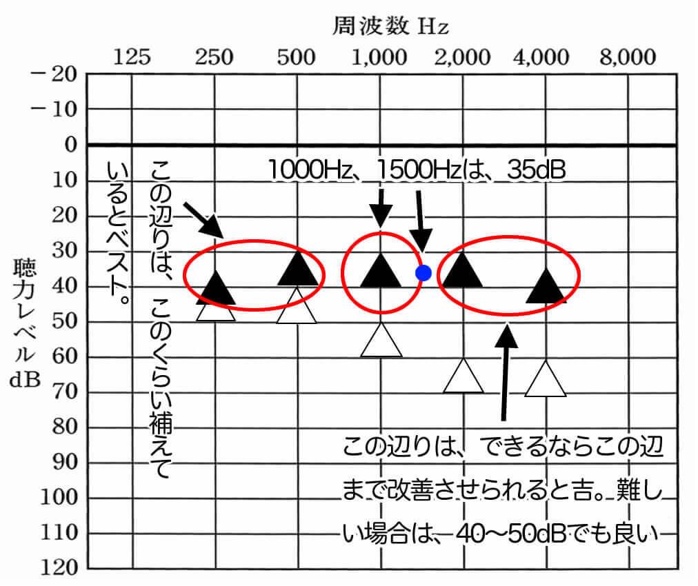 聞こえが良い方の測定結果を見てみると、上記のような特徴がある。
