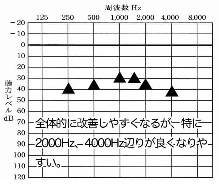 聞こえに関しては、全体的に上がりやすい。1000Hz、1500Hzは、簡単に30dBくらいまでいく。そして、2000Hz、4000Hzも上がりやすい。数値だけを見れば、いいことずくめ。