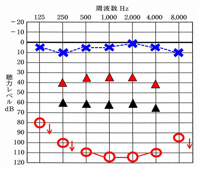 右側の聴力が下がっていると仮定。▲が補聴器を装用した効果。赤い△は、補聴器で効果を望むのに必要な数値。補聴器は、聴力が低下するとするほど、効果が薄くなる。