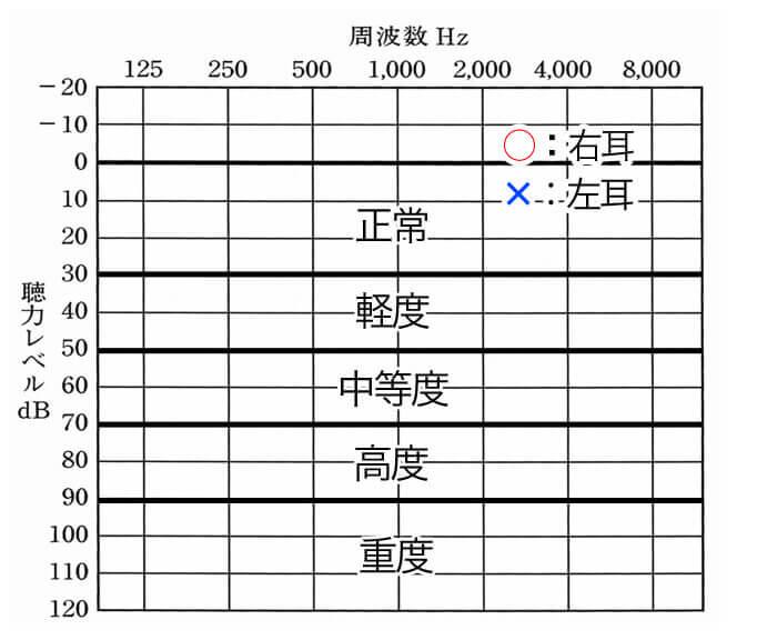 主な見方。○は右耳を表し、×は、左耳を表す。聴力の程度は、数値ごとの通り。