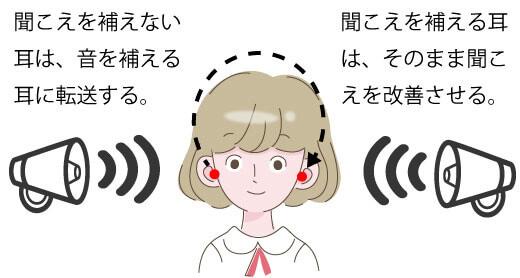 補聴器で聞こえを補えない耳側は、聞こえを補える側に転送し、聞こえを補える耳側は、そのまま補聴器として、聞こえを補います。そのようにして、聞きにくさを改善するのが、バイクロス補聴器です。