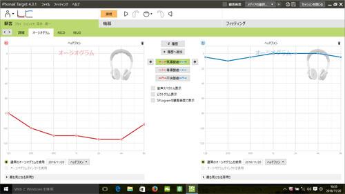 こちらは、補聴器の調整画面。はじめに聴力を入力し、その聴力に合う調整をソフトが出してくれる。