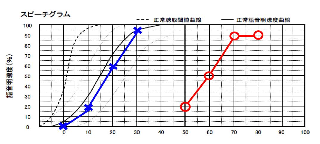 こちらは、音声を大きく聞かせると、どれだけ音声が理解できるのか。という部分を調べられる測定(語音明瞭度測定)で、測定した内容です。難聴の耳は、ほとんどが感音性難聴なため、このような言葉の聞こえを調べるものもあります。そして、補聴器で補う場合は、この数値でもある程度、数値が伸びることが条件です。