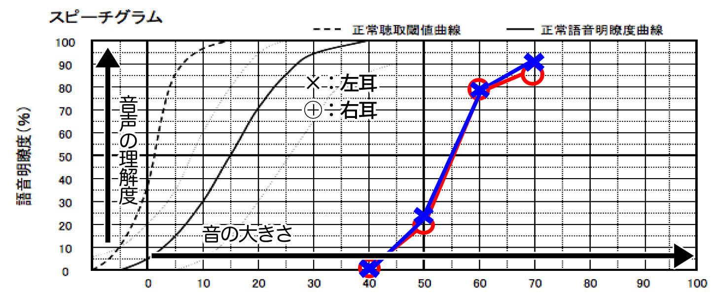 主な明瞭度表の見方。基本的にシンプルに作られており、正解数と音量しかない。