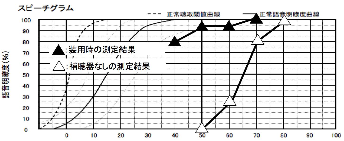 こちらは、音声の理解がどのくらいできるのか。を知る語音明瞭度測定。補聴器ありが▲、補聴器なしが△になる。横が音の大きさで縦が正解数になる。