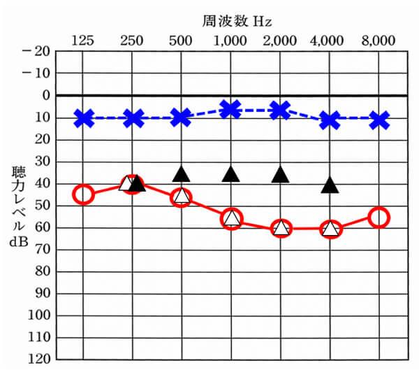 ▲は補聴器を装用した状態、△は、補聴器を装用していない状態。補聴器の世界には、補聴器の効果を可視化するものがある。それを使うことで、聴力ごとの効果を割り出すことができ、それにより、どのくらいの聴力であれば、補聴器の方が効果が高いのかもわかる。