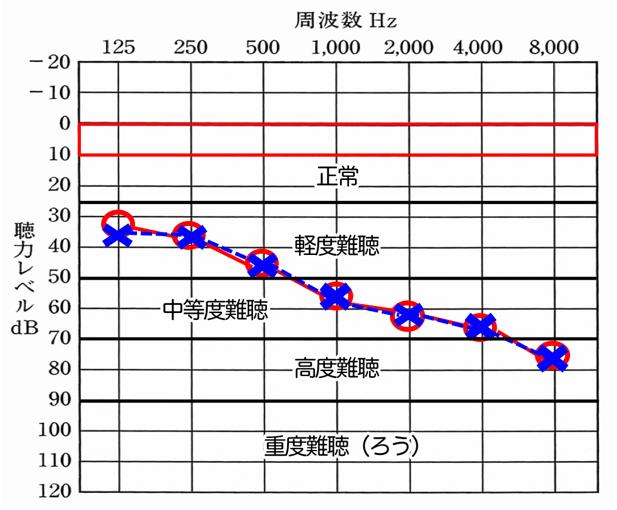 主な聴力図の見方、例。聴力レベルが下がると下がるほど、聞きにくくなり、周波数は、それぞれの音の高さを表す。