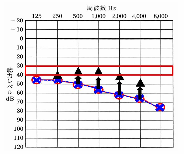 補聴器を装用して改善できる数値は、おおよそ決まっている。だいたい、35dBくらいまで改善でき、良いケースは、30dBくらい行くケースもある。