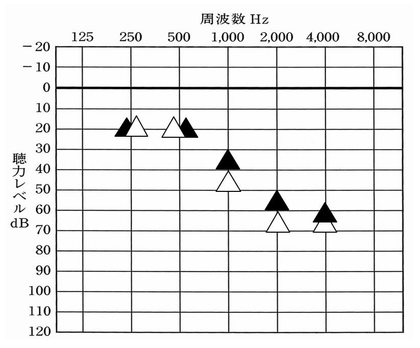 上記のケース、同様。補聴器を装用した状態で測定したデータ。こちらは、1000Hzが改善されることにより、効果に関して感じやすくなった例になる。