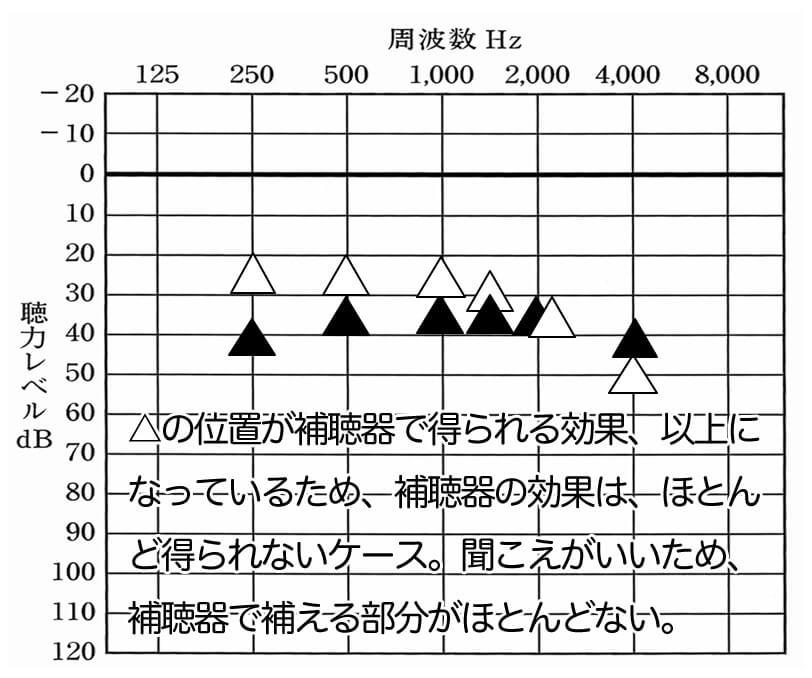 逆にこのようになるとかなり厳しい。特に、500Hz、1000Hz、1500Hzが改善値よりも上のケースは、厳しいケースが多い。