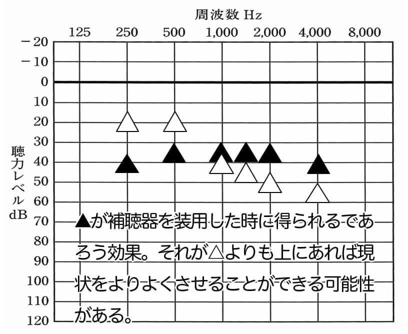 補聴器で改善できる数値は、限られている。それが、▲の位置になる。それよりも測定し、△の位置が下にあるものは、改善させやすい。特に重要なのは、500Hz、1000Hz、1500Hz、この部分が下がっていれば聞こえを改善させることが可能。