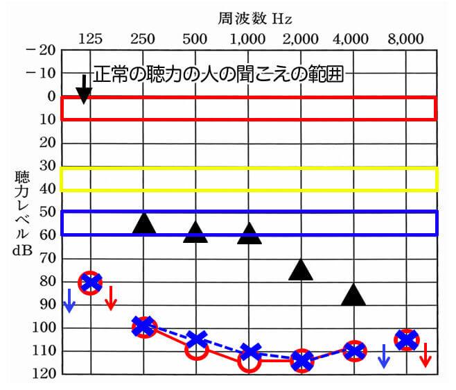 数値の意味に関しては、この通り。ある程度、聴覚のみで理解する場合、音だけで評価するとこのようになる。黄色まで聞こえを改善できるとそれなりに良くなるのだが、残念ながら重度難聴の方は、青の範囲内までしか改善できないことが大半になる。