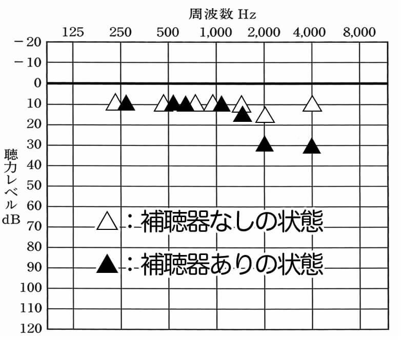 音場閾値測定を行い、実際の状況を調べてみたのが、こちら。補聴器がある状態により、下がってしまっている部分が、2000Hz、4000Hzがある。