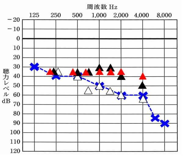 補聴器の場合、特に意識したいのは、750Hz、1000Hz、1500Hzの改善値。この部分の改善は、音声の聞きやすさに大きく影響するため、是非とも改善させたい部分となる。