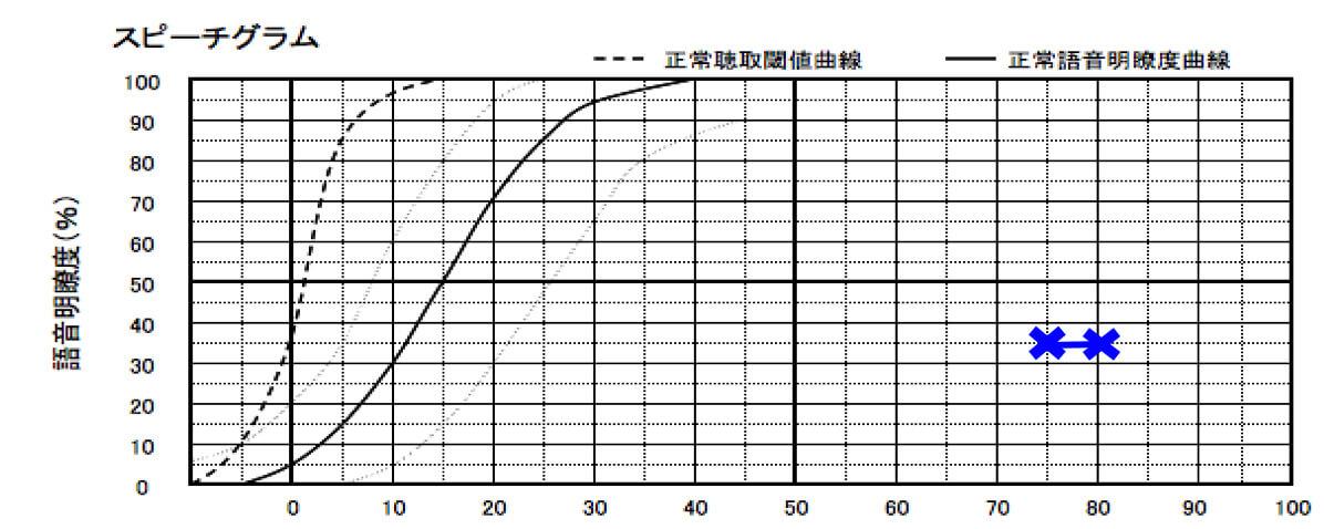 聴力からすると音量が大きいが、音量を確認しながらやった結果、このような結果に。