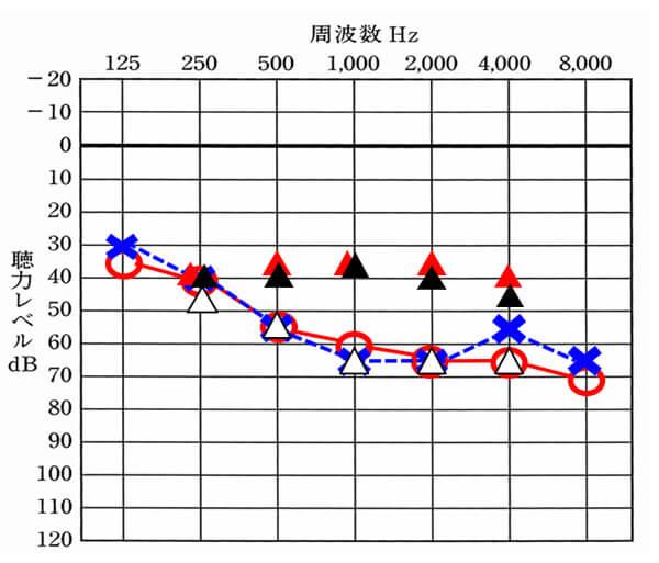 音場域値測定の例。△が補聴器なし、▲が補聴器を装用した時の聞こえ。そして、赤い△が補聴器を使用した時の改善目標値。改善目標値は、調整する人、各々が決める数値になる。