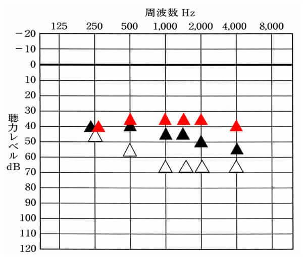 改善目標値:赤い三角。現状:▲。目標までちゃんと改善しているのか。それを見る必要があった。