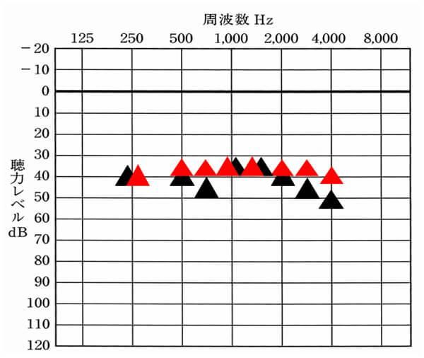 これは、音場閾値測定で測定した数値。▲が補聴器を使用している状態。赤い△が改善目標値だとすると、このように数値化される。すると、どの周波数が足りていないのか。逆に良い状態まできているのかもわかるようになる。補聴器は、可視化すると、状況が一気にわかりやすくなる。