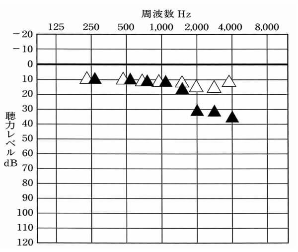 クロス補聴器を装用した状態▲と補聴器なしの状態△。実際にどのくらい聞こえにくくなるのか。それを可視化するとだいたいこんな感じになることが多い。低い音は軽減されないが、高域が結構低下する。