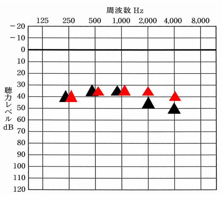 ▲が補聴器なしの状態。赤い▲が補聴器で目指す目標値だと設定。