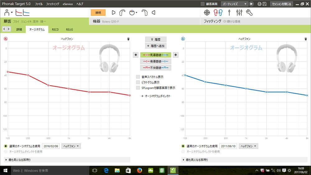 補聴器を調整する際は、フィッティングソフトを使用し、調整していく。その聴力を入れる際の画面が、こちら。