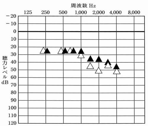 1200Hz以降を下げたが、結果は、この通り。ほぼ反応はせず、1500Hzのみ数値としては下がった。ただ、体感では、変化は感じるとの評価だった。