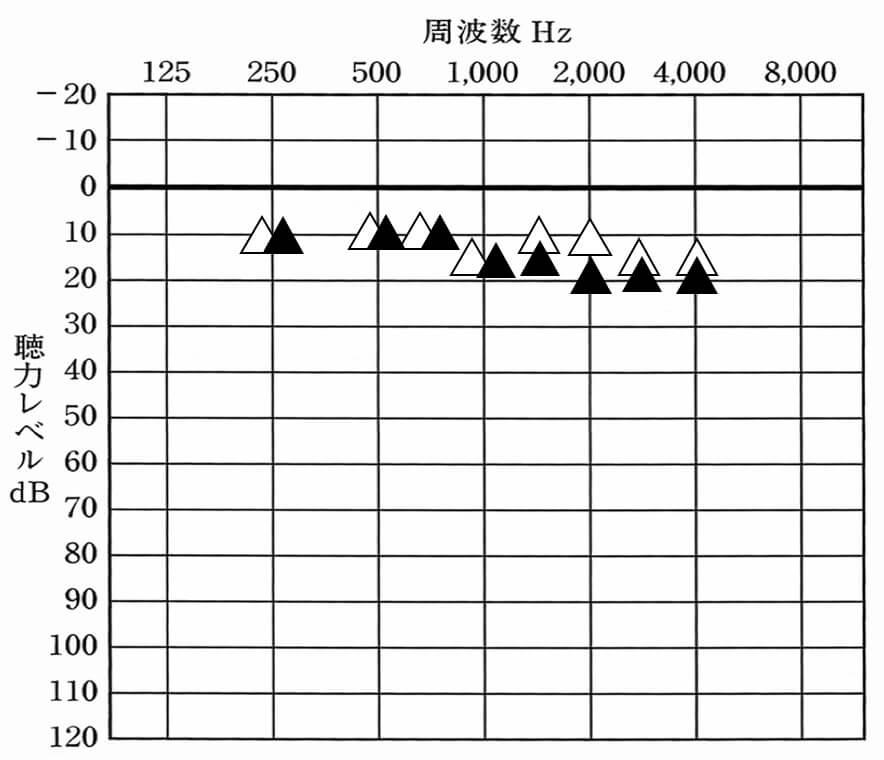 △が補聴器なし。▲が補聴器あり、できれば、▲は、このくらいまでで抑えられると良い。聞きにくさをどうも感じにくい傾向がある。