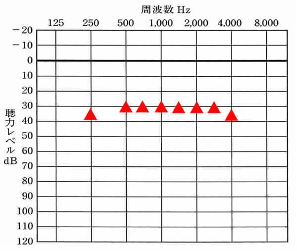 軽度の難聴(平均45dBほど)の場合における目標値。だいたいここまで補聴器で改善はできる。実際には、25dBでも大丈夫な方はいるが、割合としては少ないため、こちらをベースに考えると良いだろう。